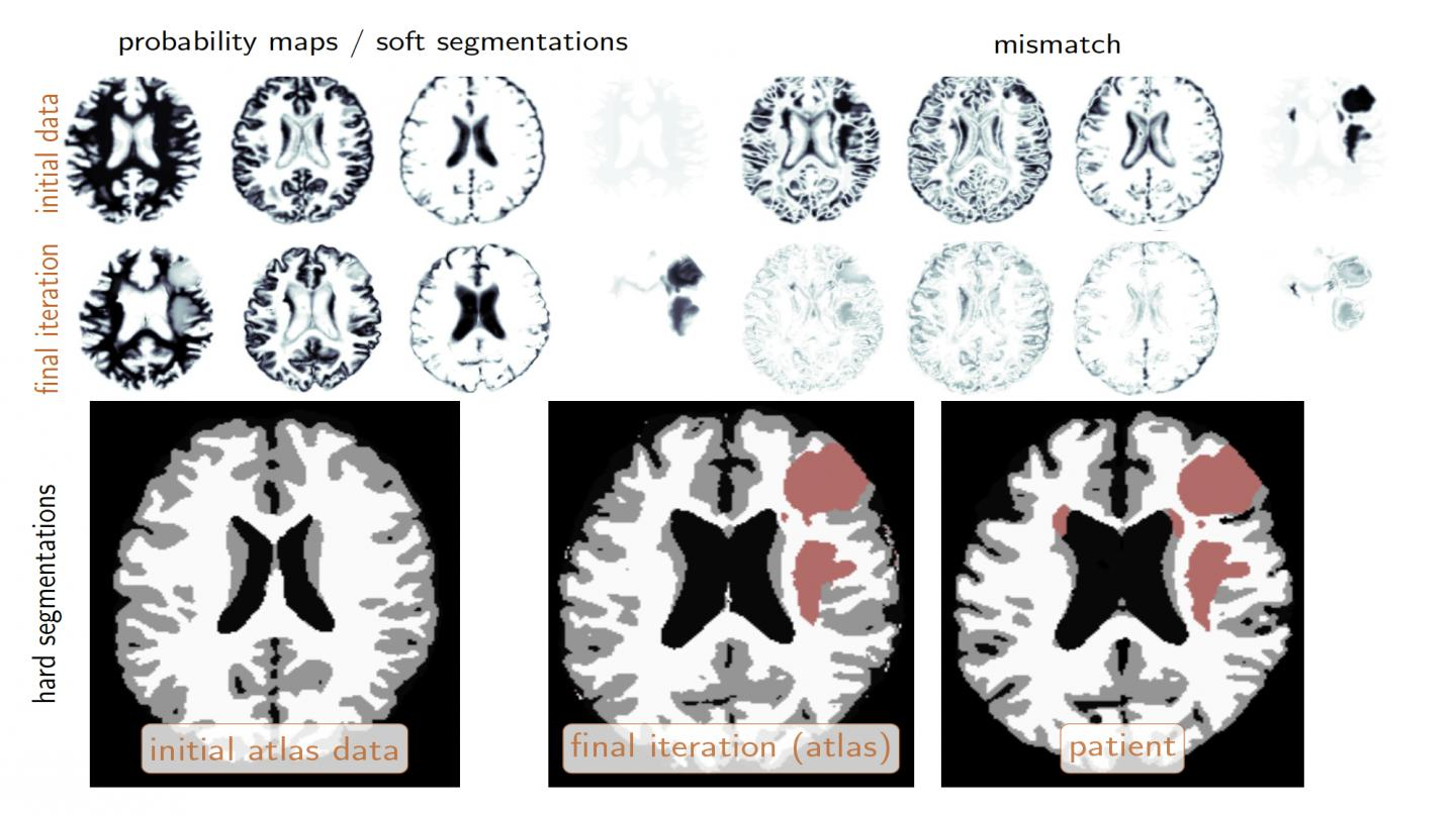 The top row shows the initial configuration. The second row shows the same configuration at the final iteration of the coupled tumor inversion and registration scheme. The three images on the bottom show the corresponding hard segmentation. The obtained atlas based segmentation (middle image) and the ground truth segmentation for the patient are very similar. Source: George Biros