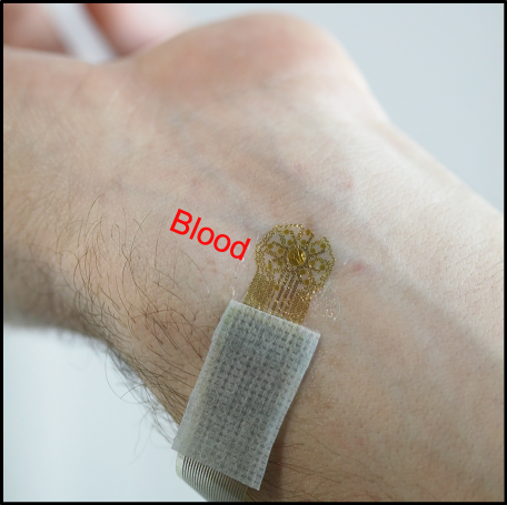 Researchers have developed an ultra-thin, wearable epidermal sensing device that resembles a temporary tattoo that measures vascular and tissue health by mapping blood flow. The device provides physicians with information that advances wound care and treatment of a wide range of diseases. (Source: R. Chad Webb, Department of Materials Science and Engineering, University of Illinois at Urbana-Champaign)