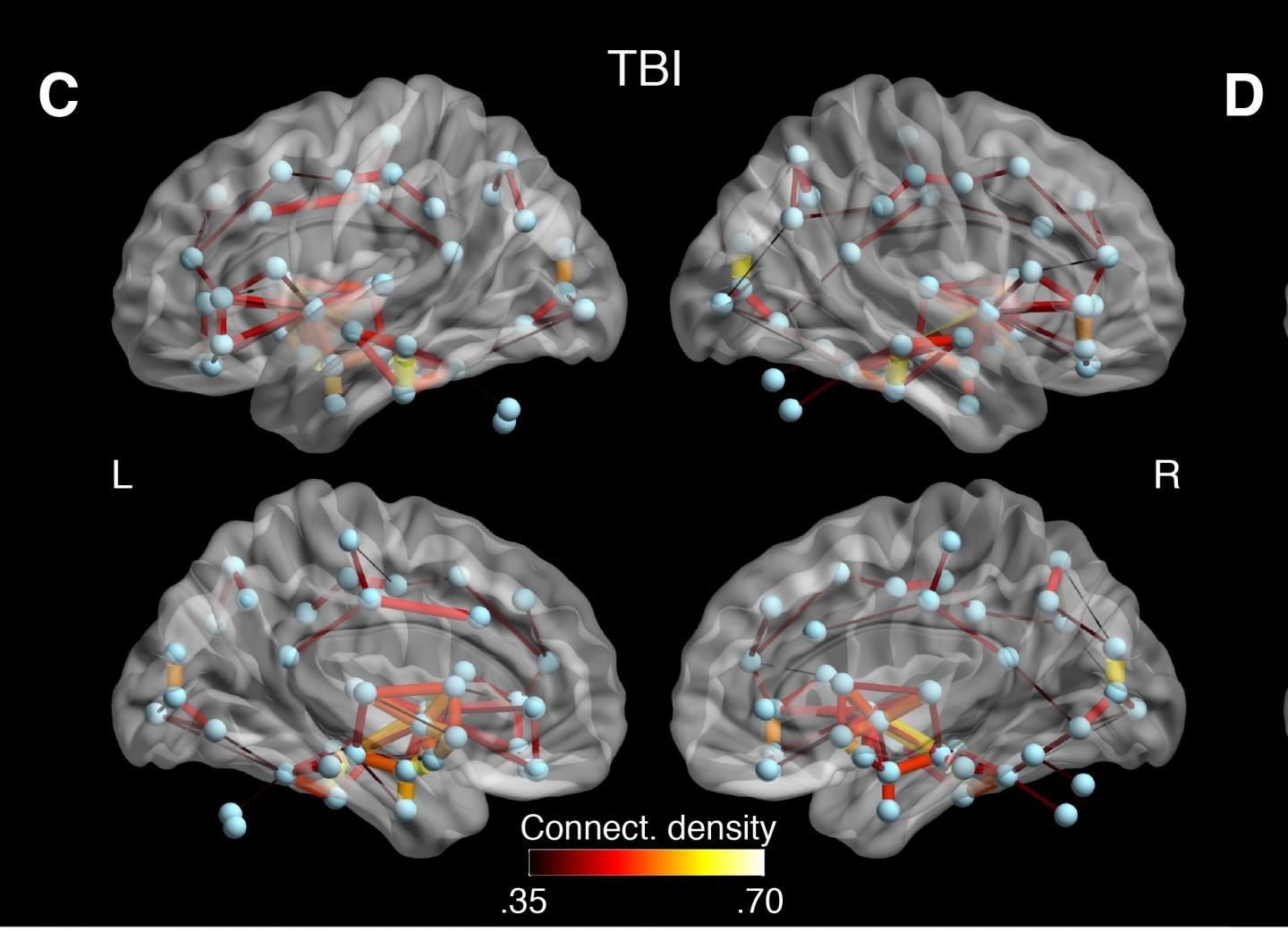 Researchers found that white matter connections between several brain regions of concussed individuals showed abnormal connectivity that might reflect both degeneration and the brain's method of compensating for damage. (Source: Sebastien Tremblay)